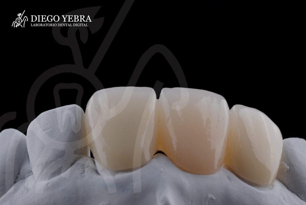 prótesis dental de zirconio