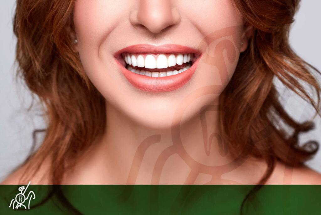soluciones en estética dental
