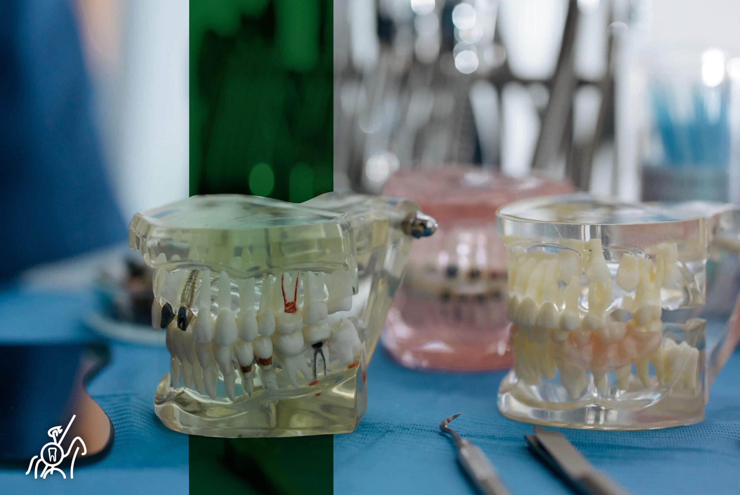 Prótesis digitales: ¿Cuál es el papel del dentista?