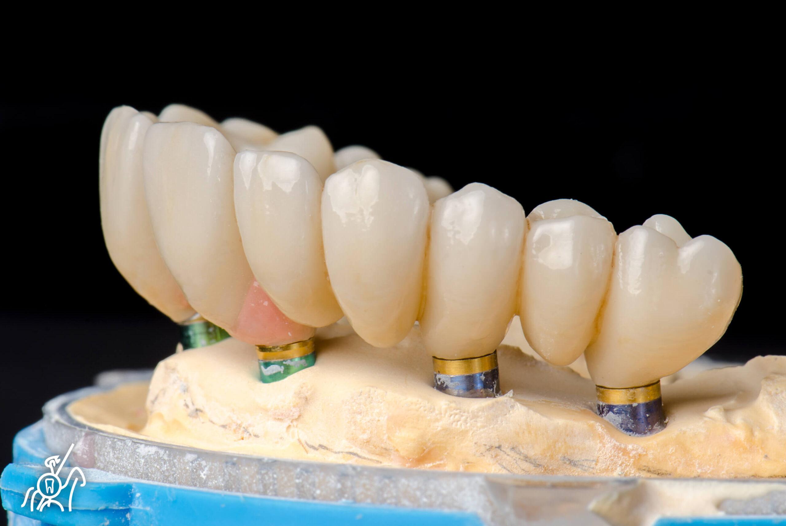 Zircónio monolítico multicamadas na estética dentária